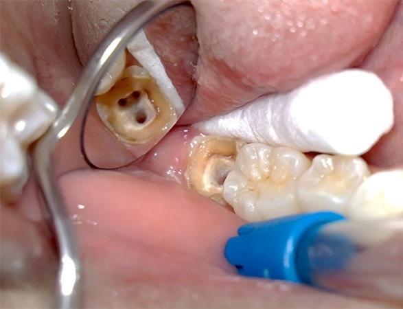Как сделать так чтобы нерв на зубе 8